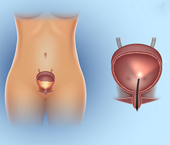 Interstitial Cystitis Treatment Mona Lisa Touch in Lake Forest from Dr. Sanjay Gandhi
