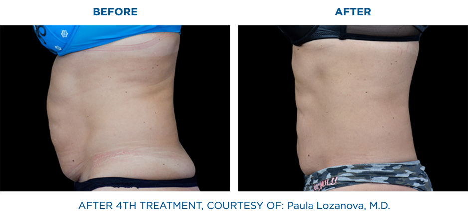 EMSCULPT before and after real patients