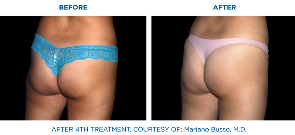 EMSCULPT clinic before and after results butt