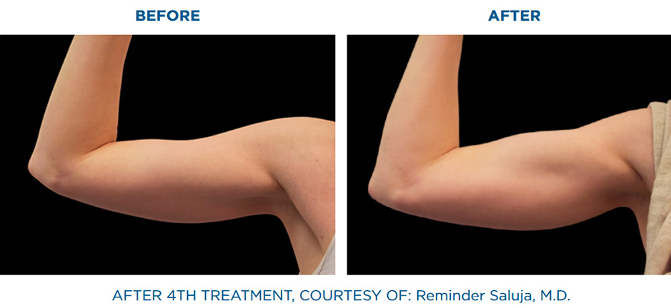 EMSCULPT clinic before and after results arm lift