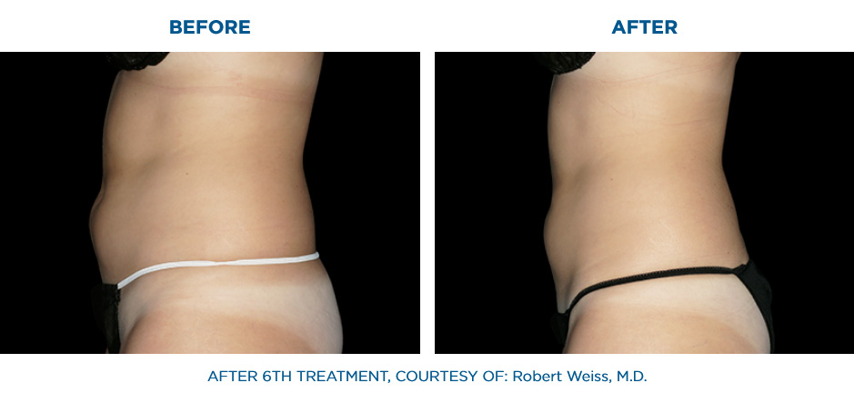 EMSCULPT clinic before and after results Abdomen